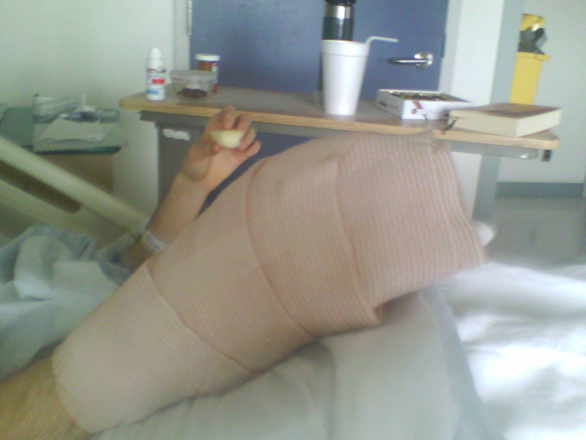 The day of my skin graft